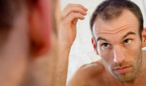 Haircare – Dealing with Thinning Hair
