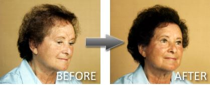 Hair Thickener – How does it work?