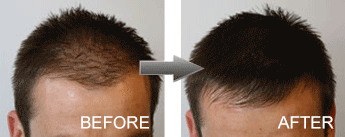 Hair Loss Fibres Male before and after