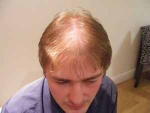Hair Loss Is there a cure