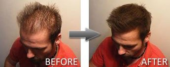 Hair Thickener Before and After 5