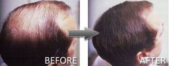 Hair Thickener Before and After 6