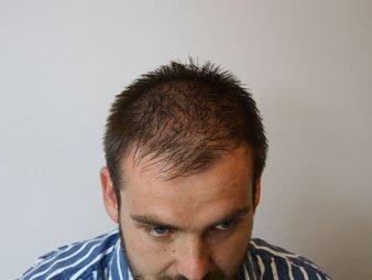 ManeAmerica.com Hair Loss Fibers
