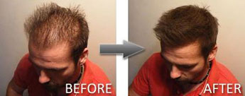 Hair Thickener Male before and after