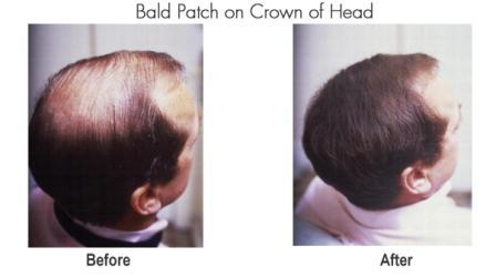 Bald Patch on Crown of Head compressed