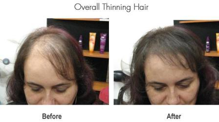 overall thinning hair compressed