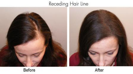 receding hair line compressed