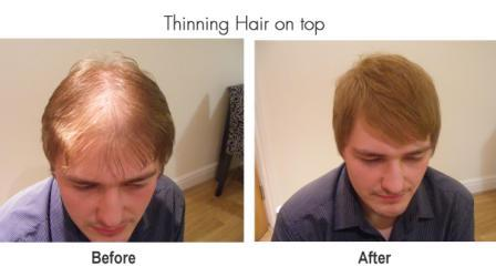 thinning hair on top compressed